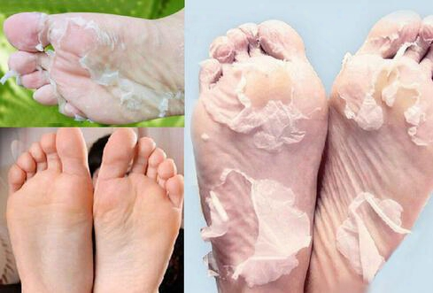 Hot Sales Vinegar Remove Dead Skin Foot Skin Smooth Exfoliating Feet Mask Foot Care 20pcs/lot